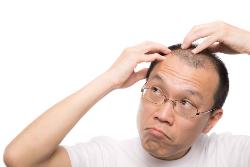 M字の生え際が気になる禿げ男性 モデル:サンライズ鈴木|AGA・男性型脱毛症・ハゲ・薄毛