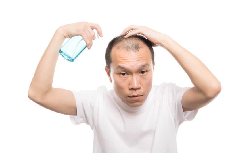 トニックスプレー(育毛剤)を頭皮に噴射する薄毛男性 モデル:サンライズ鈴木
